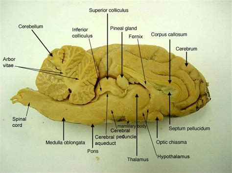 sheep brain diagram sheep brain