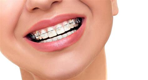 best braces squeaky clean teeth the best toothpaste for braces