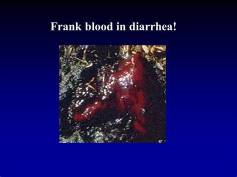diarrhea blood order strongylida hookworms necator americanus americas africa asia ppt