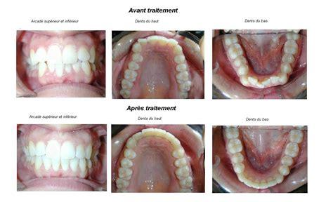 si鑒e v駘o avant orthodontie adulte