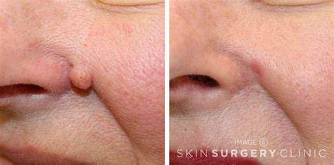 image gallery mole removal