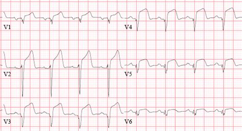 ecg pattern meaning top 5 mi ecg patterns you must know learntheheart com