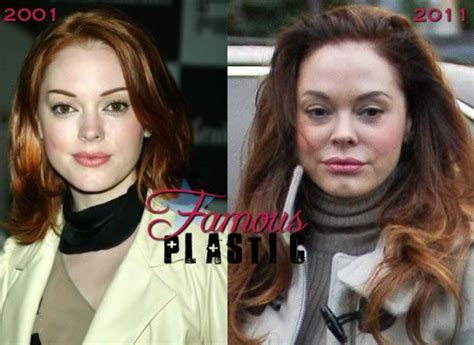 rose tarlow plastic surgery rose mcgowan had very bad plastic surgery botox