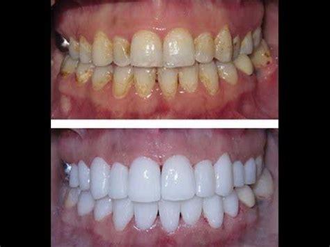 home remedies  whiten teeth naturally quora