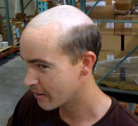 bald on top of hairstyles mens hairstyles for thin hair