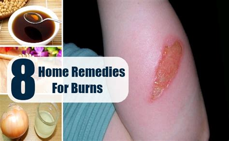 8 home remedies for burns treatments cure for