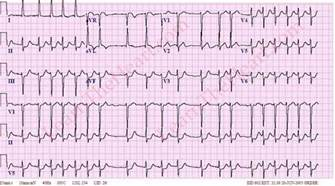 how to get out of afib at home atrial fibrillation with rvr 2 learntheheart