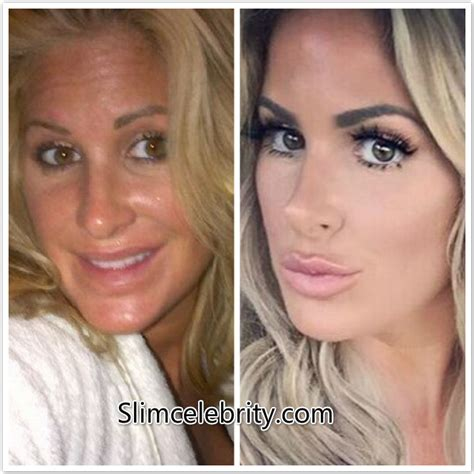Rowena And Arianna weight loss and plastic surgery