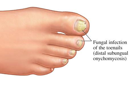 Fungal Infections May Affect Your by Fungal Nail Infection The Fylde Clinic