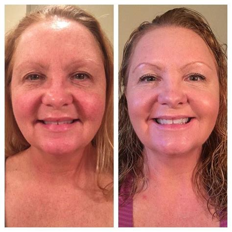 Eyeball Pc No I Dont Get It Either by 17 Best Images About Rodan Fields Brown Spots