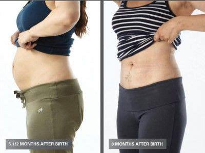 postpartum diastasis recti exercises images