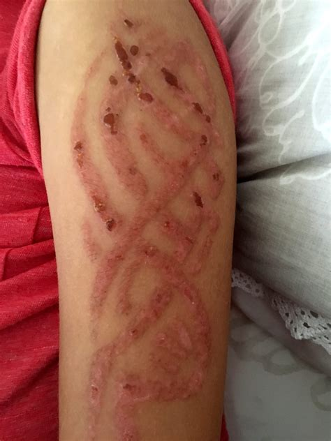 henna tattoo allergie issues warning after seven year suffers