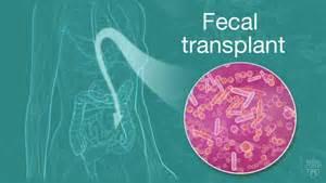 fecal transplants need better regulation experts say