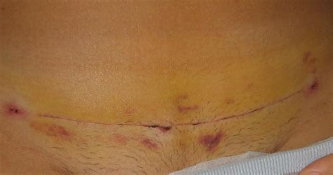 pain behind c section scar abdominal pain 3 weeks after c section die