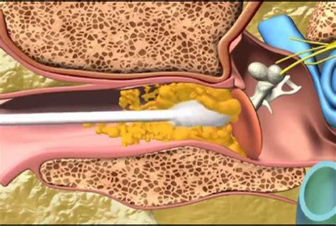 Waxvac Pembersih Kotoran Telinga Wax Vac Electric Ear Diskon waxvac earwax removal tool a marketing review a