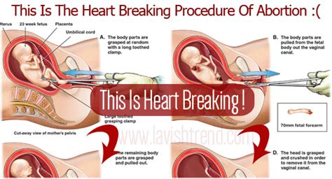 breaking procedure of abortion warning this will
