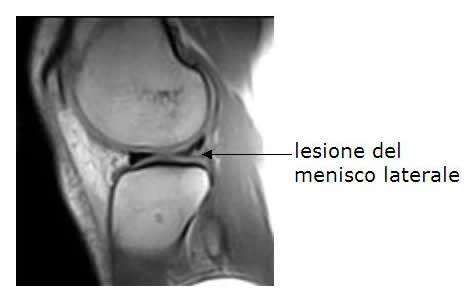 corno posteriore menisco interno lesioni meniscali