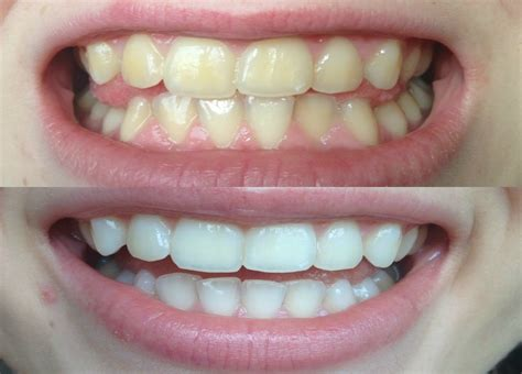 whitened   yellow teeth works