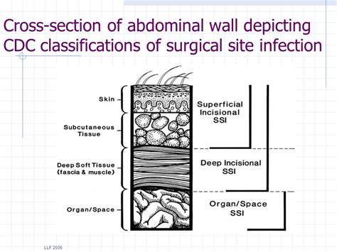 signs of c section incision infection preventing surgical site infections ppt video online