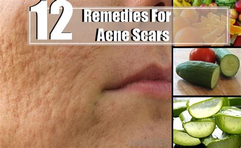 12 home remedies for acne scars treatments