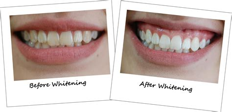 Whitening Tje cosmetic dentist perth smiles phone 08 9474