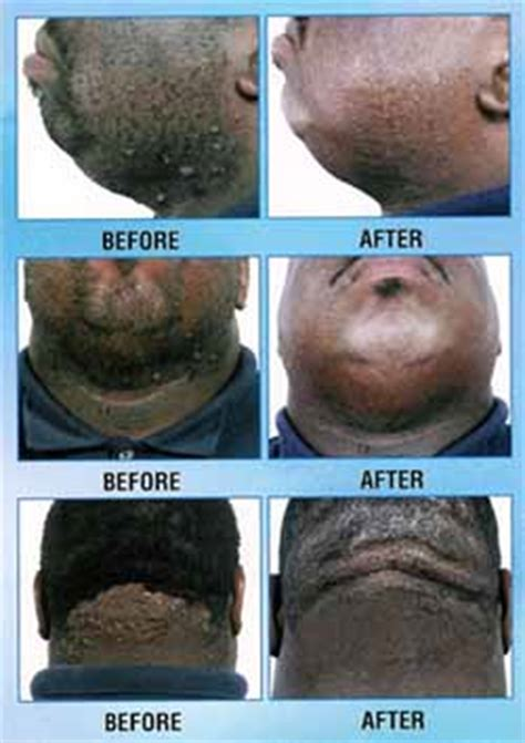 ichthammol for ingrown hair ingrown hair problems in african americans treatment by