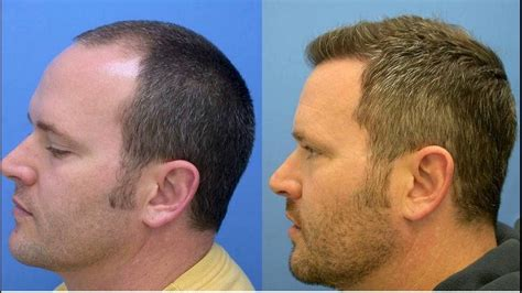 hair transplant in the philppines cost hair transplant cost in india youtube