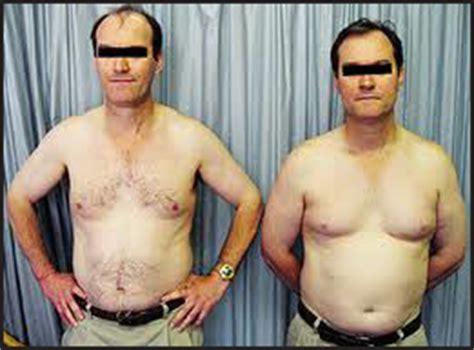 gemelli monozigoti diversi la calvizie comune maschile perch 233 232 androgenetica calvizie