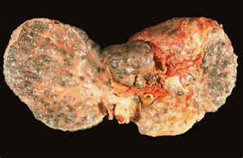 dieta alimentare per fegato steatosico fegato grasso e cura con le piante