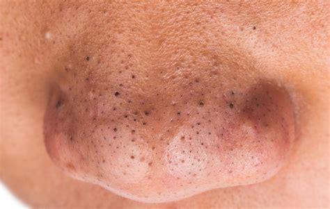black head blackhead removal on nose www pixshark com images