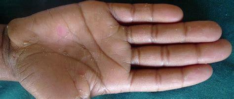 Skin Shedding Disease by Acral Peeling Skin In Two East Siblings