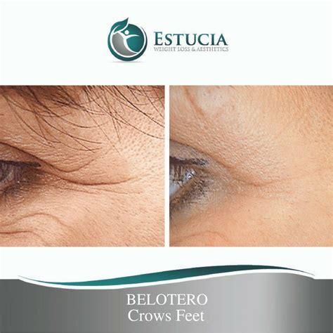 belotero treatment belotero treatment palm florida