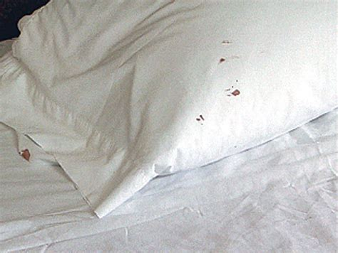 bed bugs pillows bed bug basics best treatment we clean bed bugs canada