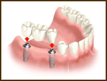 epsom dentists articles braces dental implants