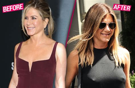 Did Aniston Get Implants by Aniston Big