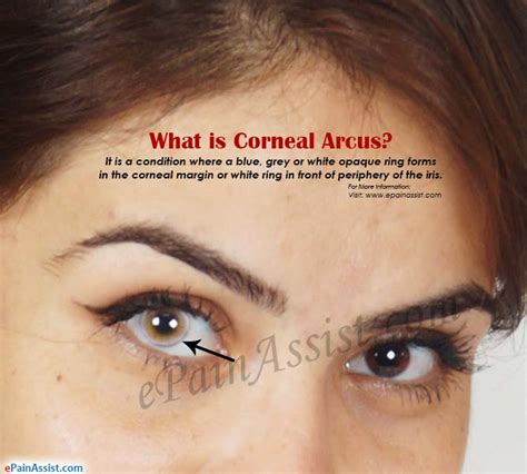 what is corneal arcus causes symptoms treatment prognosis