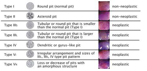 pit pattern classification in colonoscopy endoscopy in gastrointestinal oncology cancerworld