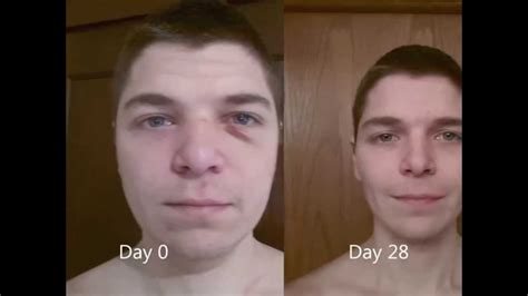 water fasting before and after day 28 week 4 look back 30 day water fast 2014