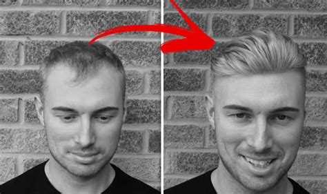 sean coronation street hair treatment sean coronation street hair treatment sean coronation