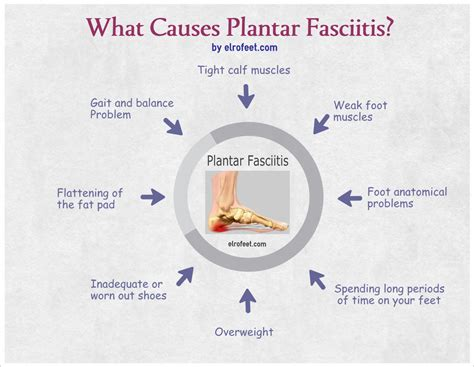all you need to about plantar fasciitis
