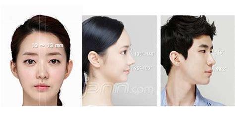 Lu Operasi ingin punya hidung seperti artis korea coba yang ini