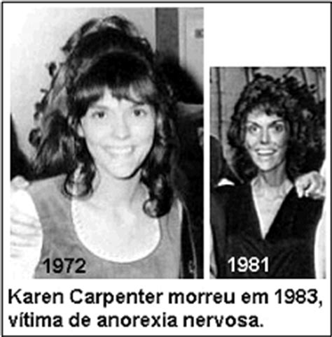 karen carpenter anorexia before and after the gallery for gt karen carpenter before and after