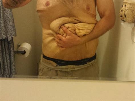 tattoo on arm after weight loss man makes incredible transformation but keeps excess skin