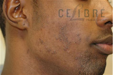 laser hair removal can benefit dark skinned people spa cielo before and after laser hair removal for ingrown hairs on