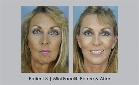 Is A Mini Lift A Facelift Alternative by Mini Lift Atlanta Before And After Photos