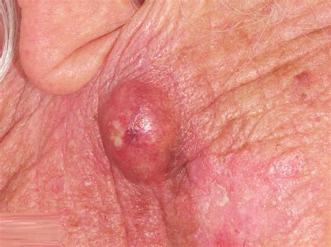cyst images
