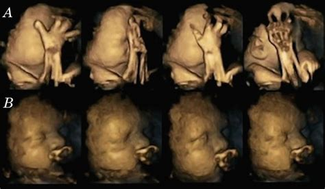 Effects of smoking during pregnancy seen in these 4-D ...