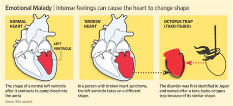 swinging heart syndrome diagnosis broken heart syndrome wsj