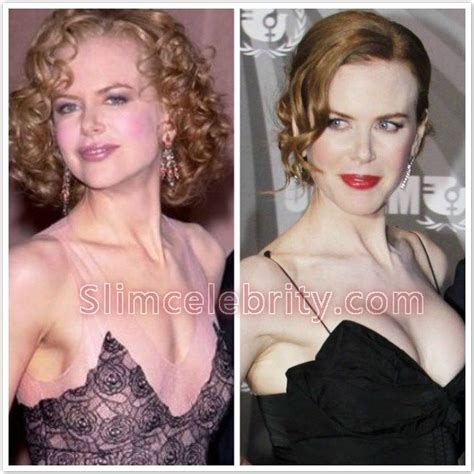 375 best images about celebrity plastic surgery on pinterest 10 best images about celebrities with breast implants on