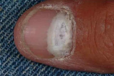 white nail beds white spots on fingernails dots patches pictures causes get rid treatment home